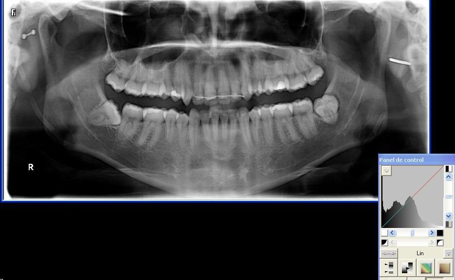 implante dentista