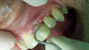 diente roto algeciras