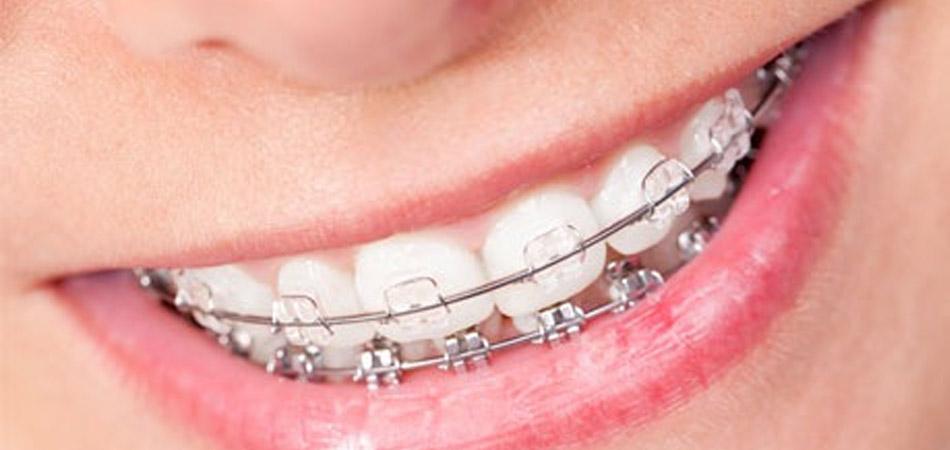 ortodoncia, algeciras
