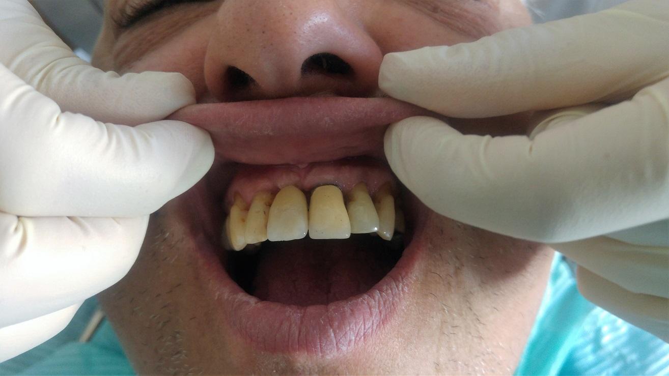 Implante diente perdido